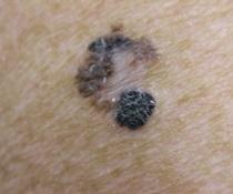Maligní melanom kůže