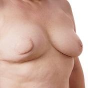 Rekonstrukce prsou
