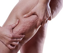 Celulitida, jak na ni
