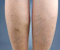 Žilky na nohách