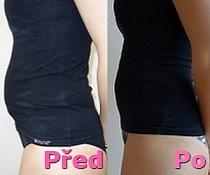 Laserová liposukce břicha