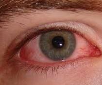 Červené oko