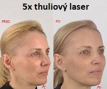 Účinné a jednoduché omlazení pleti pomocí novinky: 5x thuliový laser s mezoterapií