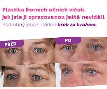 Plastická operace očních víček - video