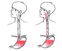 Extraezofageální reflux (EER)