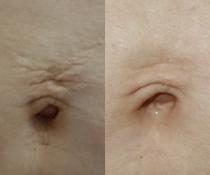 Jak liposukcí a nitěmi na nevzhledné břicho po porodu