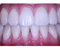Bělení zubů – jak vybělit zuby