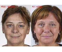Plastika horních očních víček – stav PŘED a PO