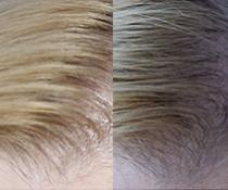 Testování šamponu proti vypadávání vlasů Renokin