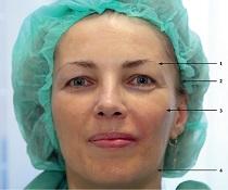Facecontouring – zvednutí gravitací pokleslých partií obličeje
