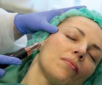 Augmentace, výplně a implantáty v obličeji